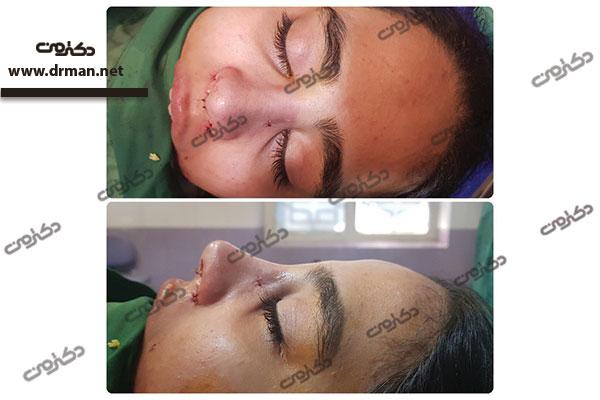 دکتر سلیمی جراح بینی
